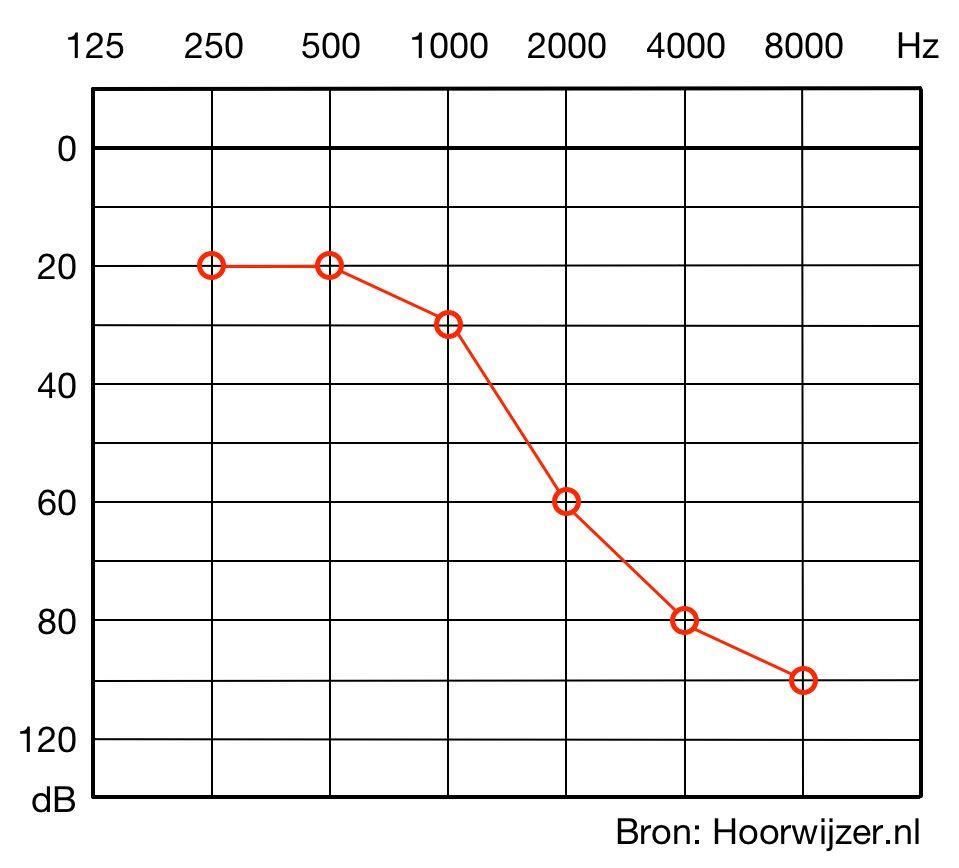 In het toonaudiogram kan je per frequentie zien hoe hard het geluid moet zijn in decibellen wil jij het kunnen horen.